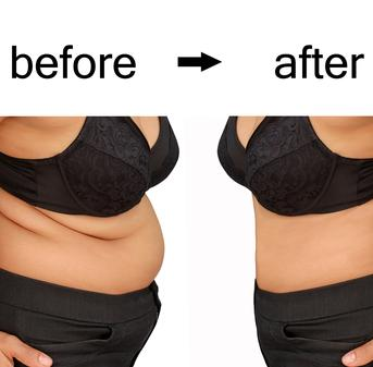 Weight Loss Clinic Calgary